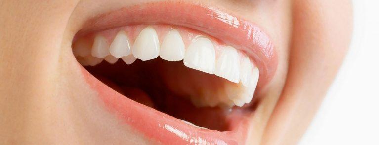 Boca sorridente feminina | Quais os tratamentos para o mau hálito?