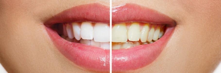 Antes e depois do clareamento dentário   Como tratar os dentes amarelados?