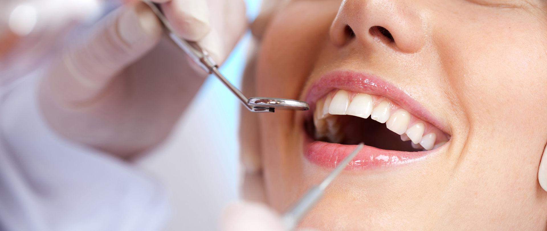 Mulher sendo examinada por dentista | Implante dentário: o que é e quais são os benefícios?