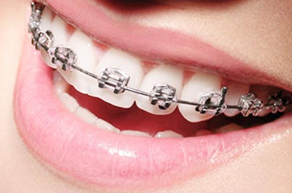 Sorriso com aparelho ortodôntico metálico | Qual a diferença entre o aparelho metálico e o aparelho estético?