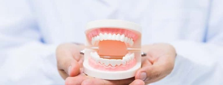 Pessoa segurando prótese dentária | Prótese dentária fixa x móvel