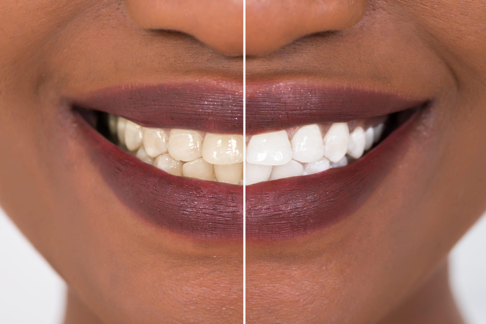 Montagem de mulher sorrindo, com metade da imagem com dentes amarelados e, na outra metade, dentes brancos | Cuidados ao fazer um clareamento dental