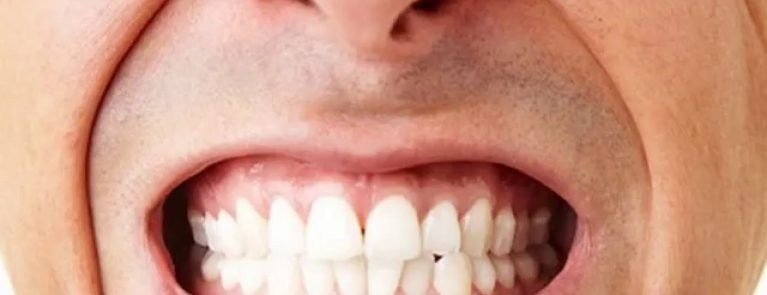 Boca masculina rangendo os dentes