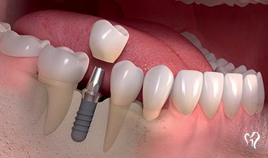 implante de carga imediata