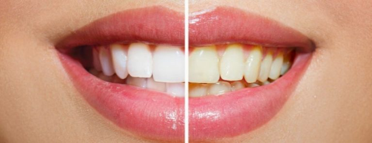 Antes e depois do clareamento dentário | Como tratar os dentes amarelados?