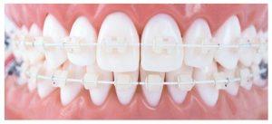 Sorriso com aparelho de policarbonato | Qual a diferença entre o aparelho metálico e o aparelho estético?