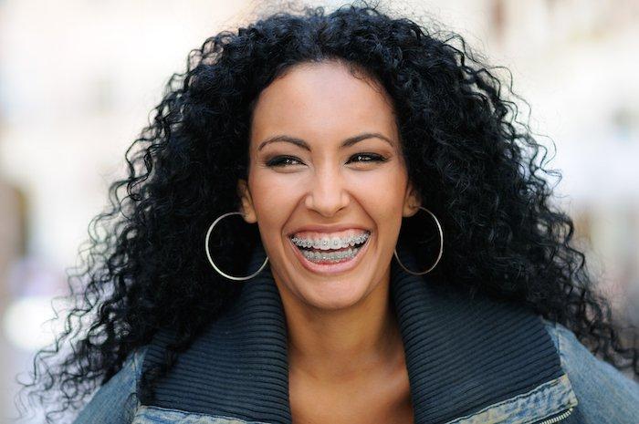 Mulher sorrindo usando aparelho ortodôntico | Cuidados com o aparelho ortodôntico